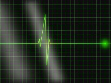 Electro Cardiograms