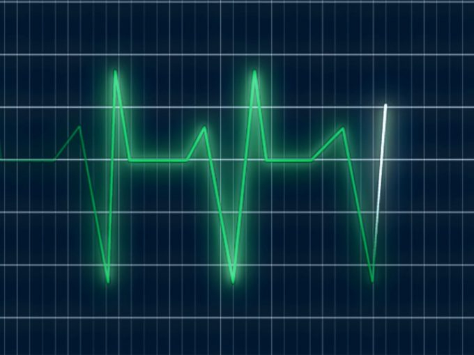 Heart Rate Graph PPT Backgrounds