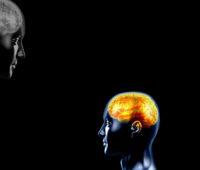 3D Epilepsy Brain Backgrounds
